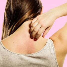 Feeling Itchy? Inflammation could be scratched out